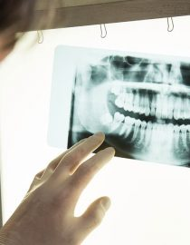 How Does Cancer Affect Your Dental Health?