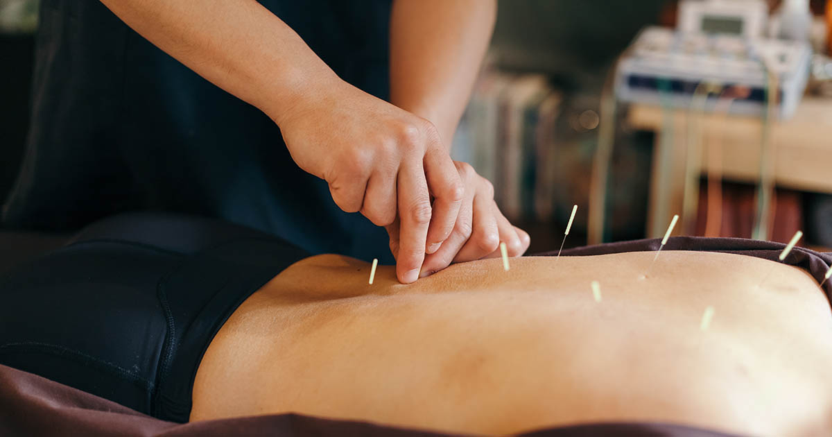 Acupuncture needles are being placed in a patient's back