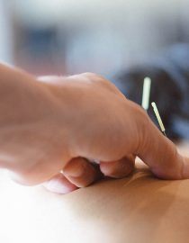 What Are the Benefits of Acupuncture for Ovarian Cancer Patients?