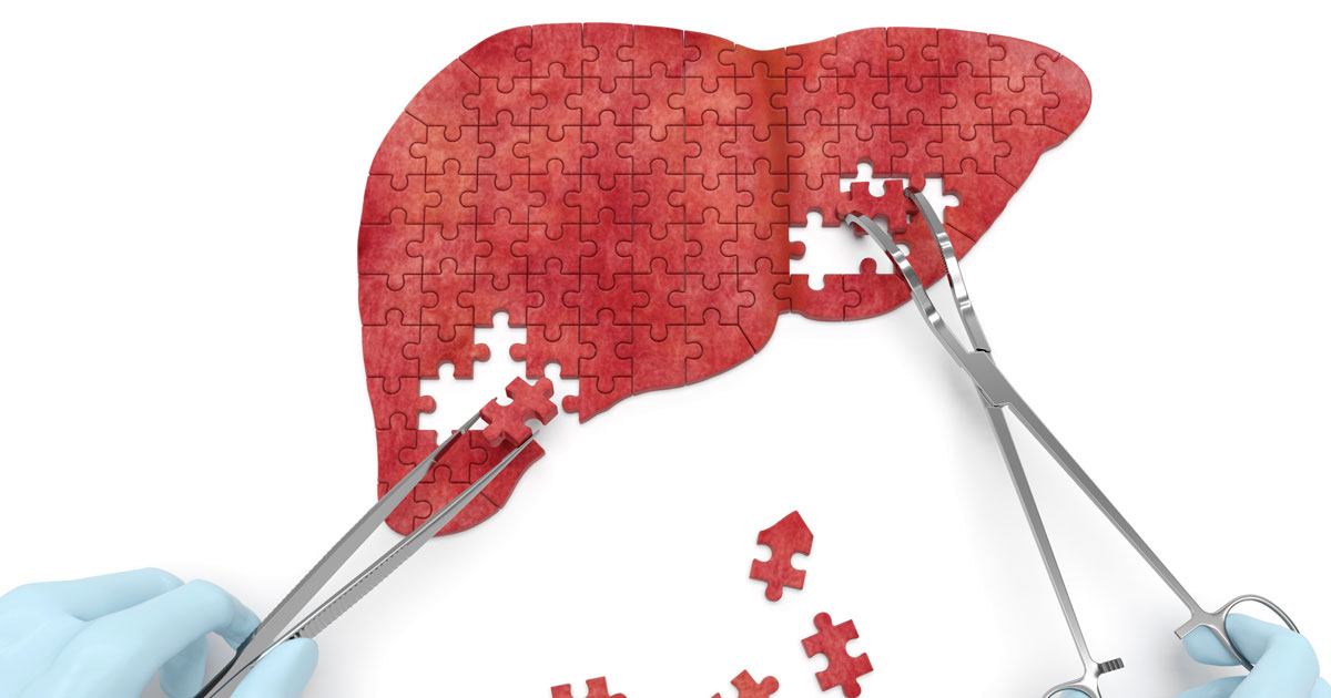 Tweezers completing liver puzzle