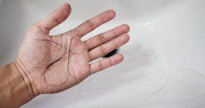 Close-up a man hand with loss hair