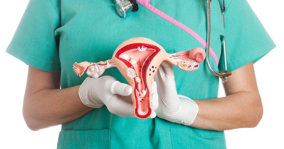 Doctor holding a model of a female reproductive system